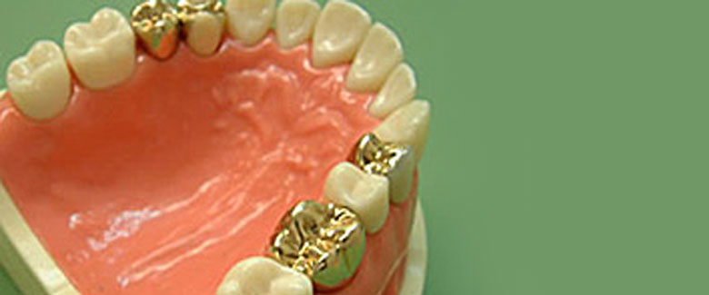 Implants, Precision Attachments and Goldwork